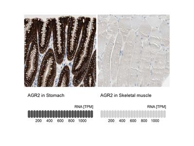 Anti-AGR2 Antibody