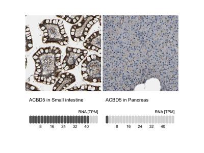 Anti-ACBD5 Antibody