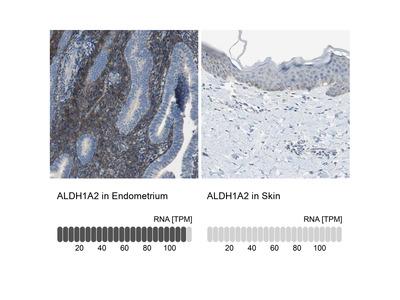 Anti-ALDH1A2 Antibody