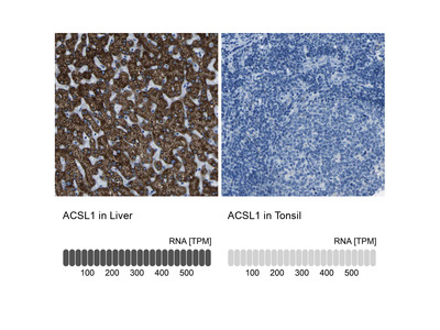 Anti-ACSL1 Antibody