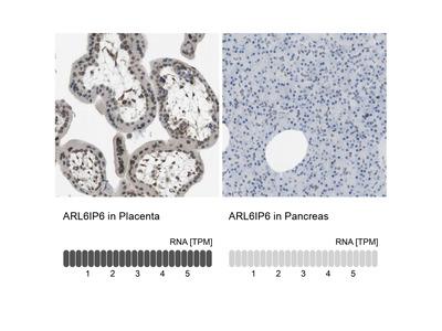 Anti-ARL6IP6 Antibody