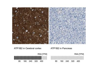 Anti-ATP1B2 Antibody
