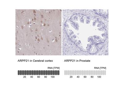 Anti-ARPP21 Antibody