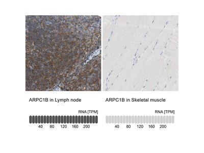 Anti-ARPC1B Antibody