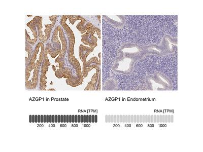 Anti-AZGP1 Antibody