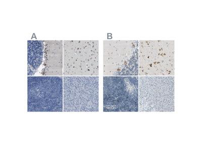 Anti-B4GALNT1 Antibody
