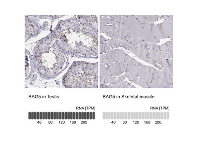 Anti-BAG5 Antibody