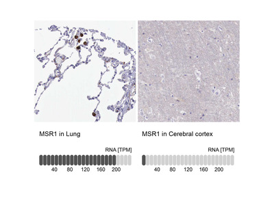 Anti-MSR1 Antibody