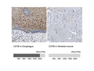 Anti-CSTB Antibody