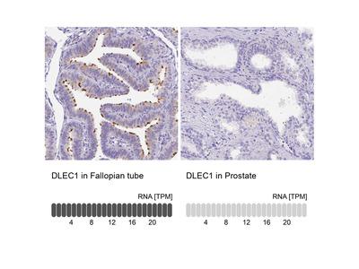 Anti-DLEC1 Antibody