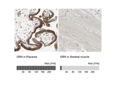 Anti-GRN Antibody