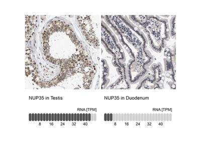 Anti-NUP35 Antibody