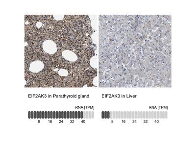 Anti-EIF2AK3 Antibody