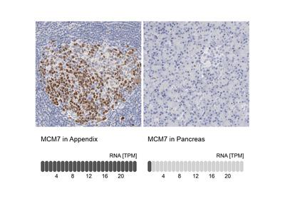 Anti-MCM7 Antibody