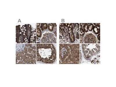 Anti-GCC1 Antibody