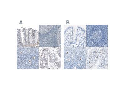 Anti-SALL4 Antibody