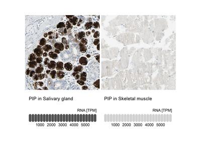 Anti-PIP Antibody
