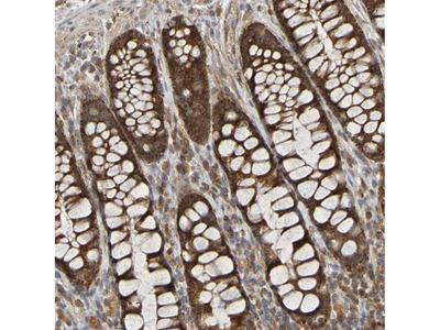 Anti-TMBIM1 Antibody