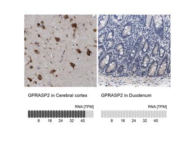 Anti-GPRASP2 Antibody