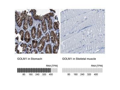 Anti-GOLM1 Antibody