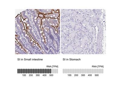 Anti-SI Antibody