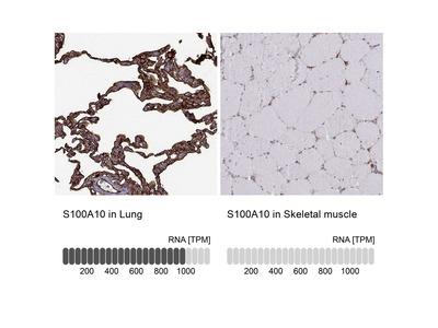 Anti-S100A10 Antibody