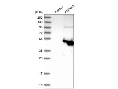 Anti-PAFAH2 Antibody