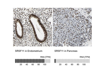 Anti-SRSF11 Antibody