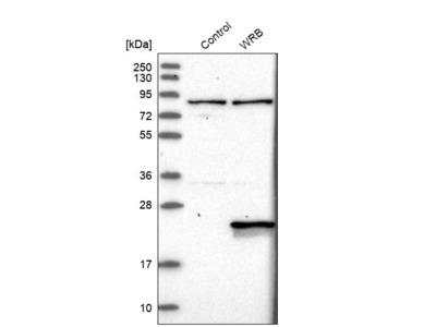 Anti-WRB Antibody