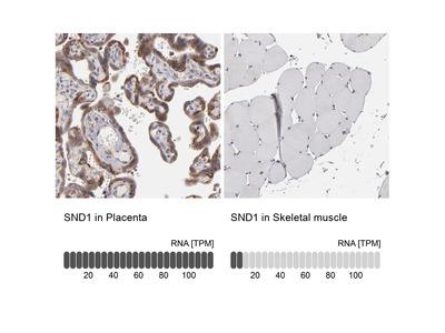 Anti-SND1 Antibody