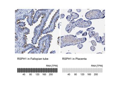 Anti-RSPH1 Antibody