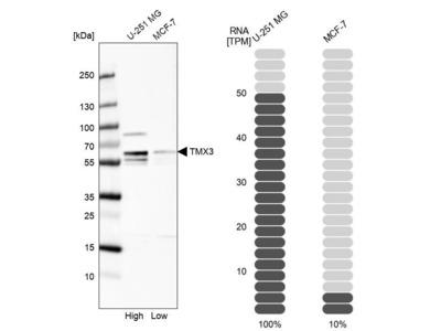 Anti-TMX3 Antibody
