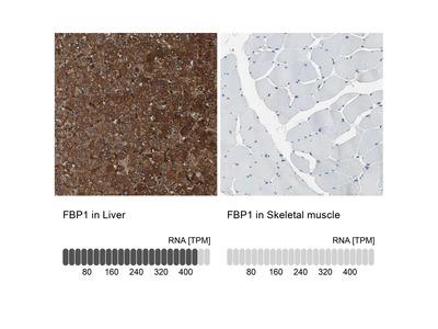 Anti-FBP1 Antibody
