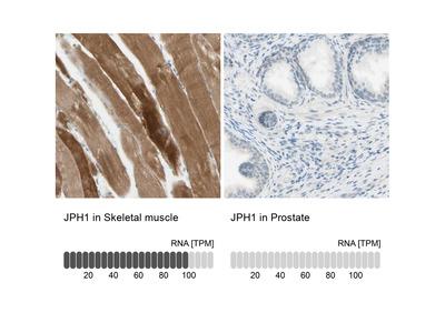 Anti-JPH1 Antibody