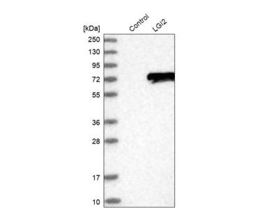 Anti-LGI2 Antibody