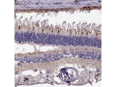 Anti-LRIT3 Antibody