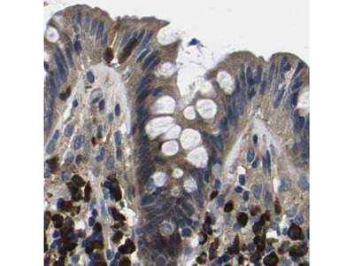 Anti-PLCE1 Antibody