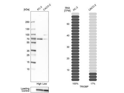 Anti-TRIOBP Antibody