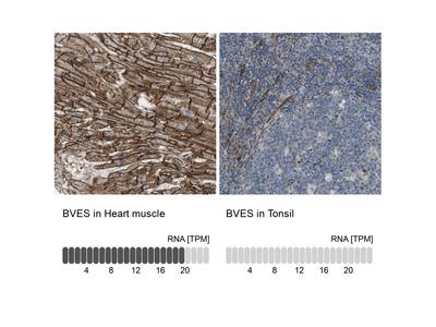 Anti-BVES Antibody