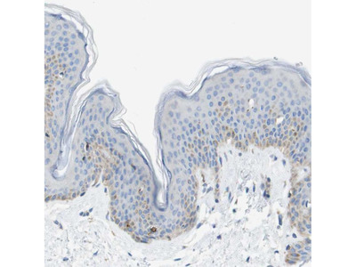 Anti-SDR42E1 Antibody