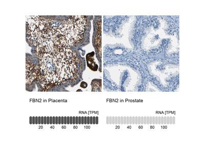Anti-FBN2 Antibody