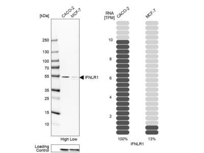 Anti-IFNLR1 Antibody