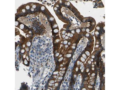 Anti-NETO2 Antibody