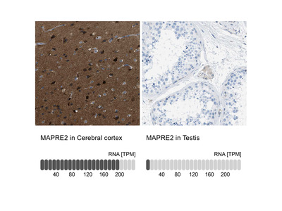 Anti-MAPRE2 Antibody for Immunofluorescence