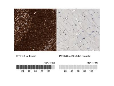 Anti-PTPN6 Antibody