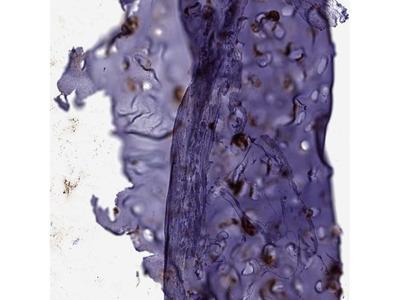 Anti-MGP Antibody