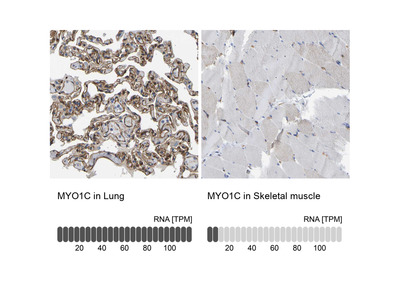 Anti-MYO1C Antibody
