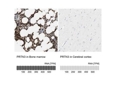 Anti-PRTN3 Antibody