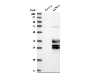 Anti-CLRN3 Antibody