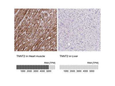 Anti-TNNT2 Antibody